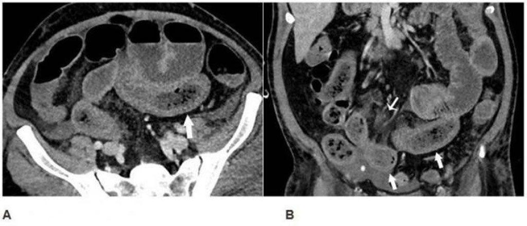 Imagen: TC axial (A) y coronal (B) del abdomen, sugestivas de isquemia temprana (Fotografía cortesía de RSNA)