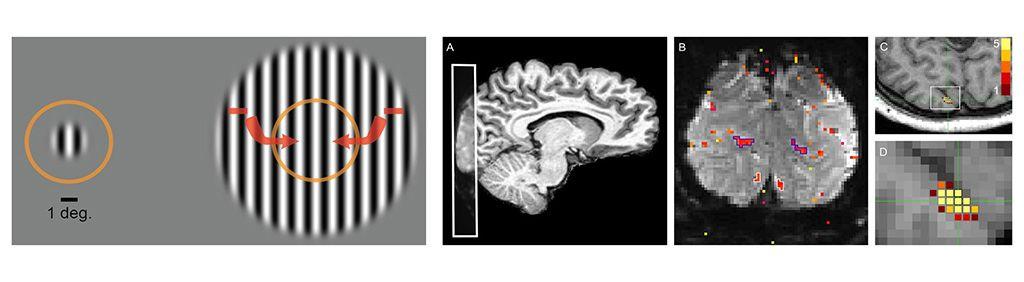 Imagen: La fMRI ayuda a revelar la supresión neuronal en el autismo (Fotografía cortesía de Michael-Paul Schallmo/UMN)