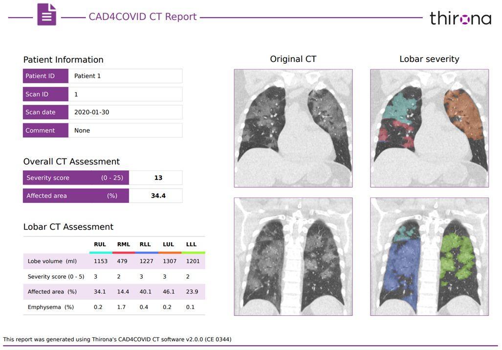 Imagen: Una muestra de un informe CAD4COVID-CT (Fotografía cortesía de Thirona)