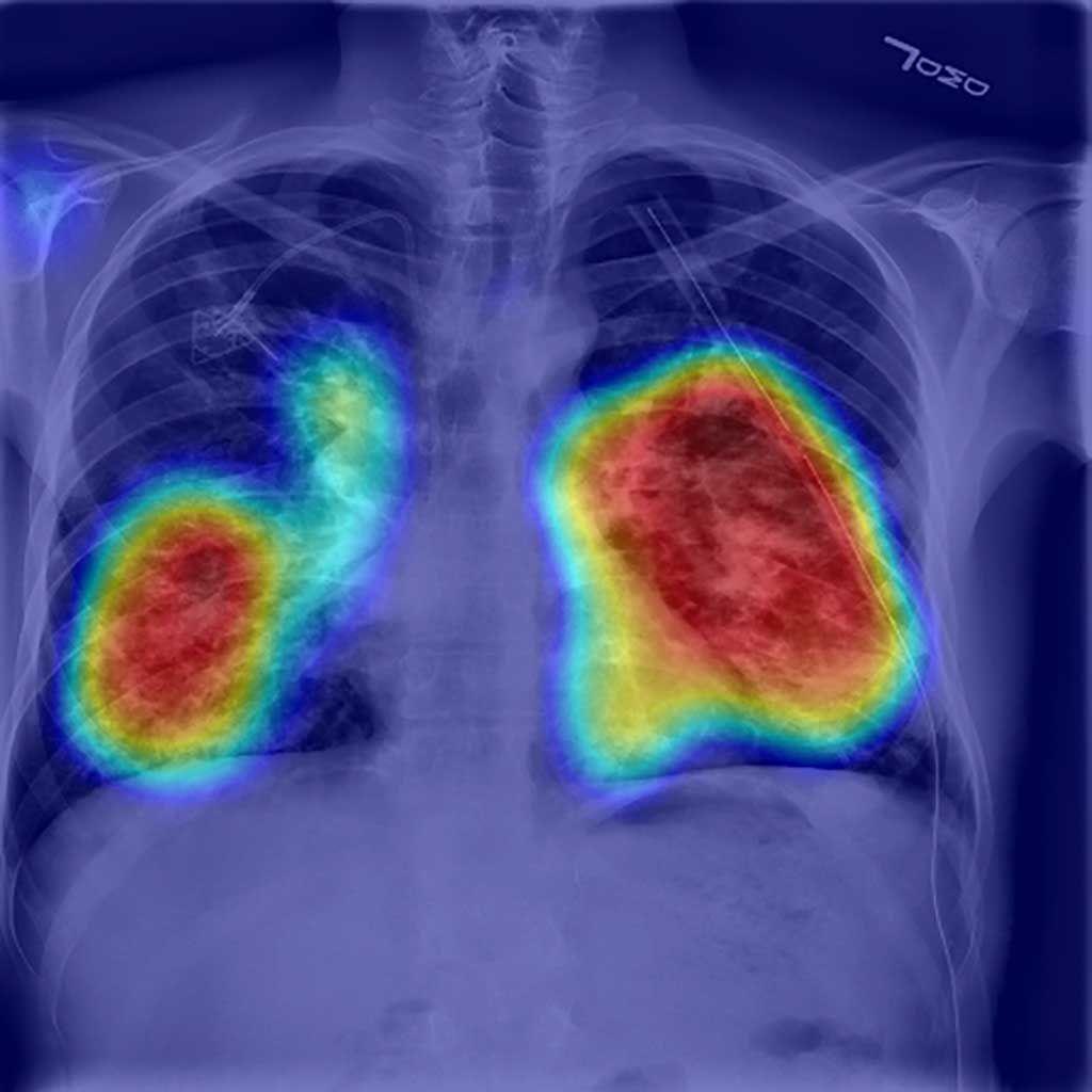 Imagen: Posibles áreas de neumotórax identificadas por IA (Fotografía cortesía de RADLogics)