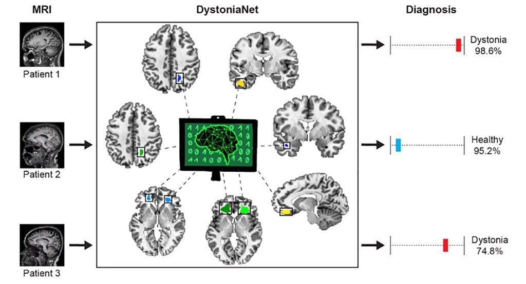 Imagen: Comparación de las imágenes de resonancia magnética procesadas por DystoniaNet (Fotografía cortesía del MEEI)