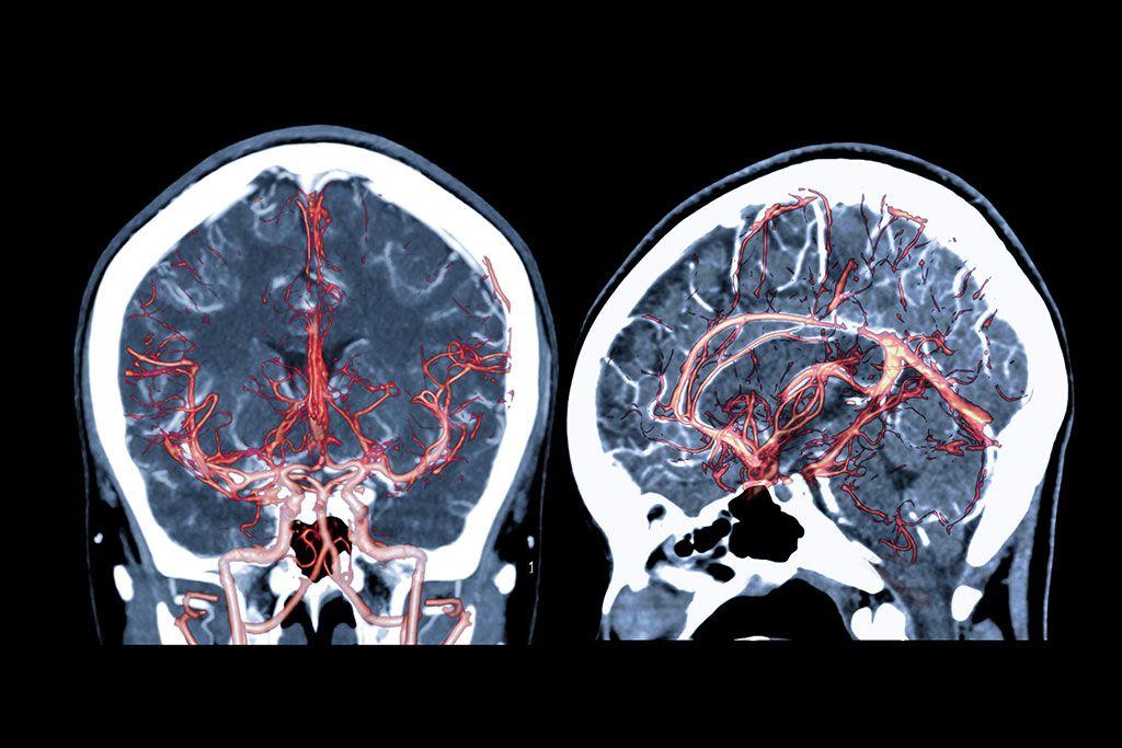 Imagen: La IA puede ayudar a identificar rápidamente las oclusiones arteriales en el cerebro (Fotografía cortesía de iStock Photo)
