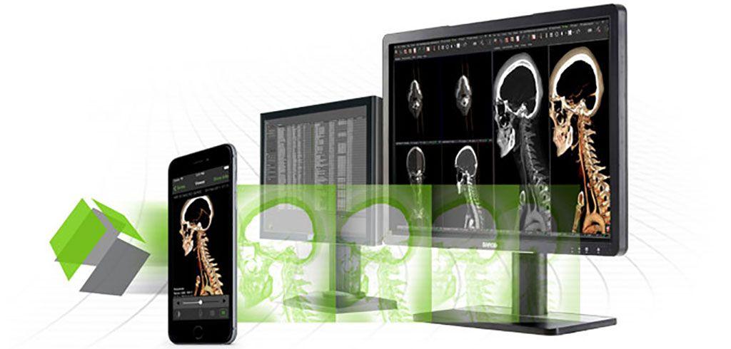 Imagen: La solución Visage 7 PACS (Fotografía cortesía de Visage Imaging)