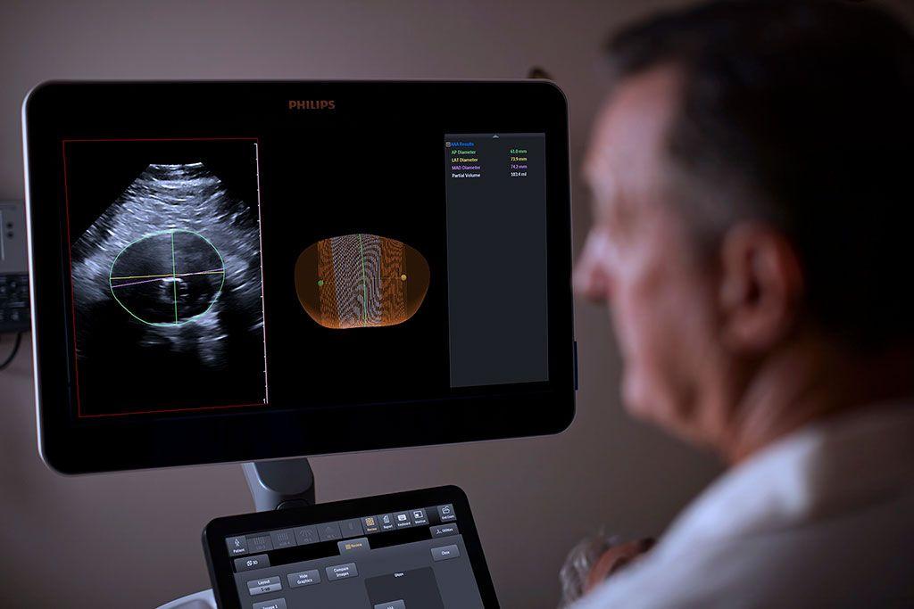 Imagen: Un modelo nuevo de ultrasonido ayuda a monitorear la progresión de los AAA (Fotografía cortesía de Philips)