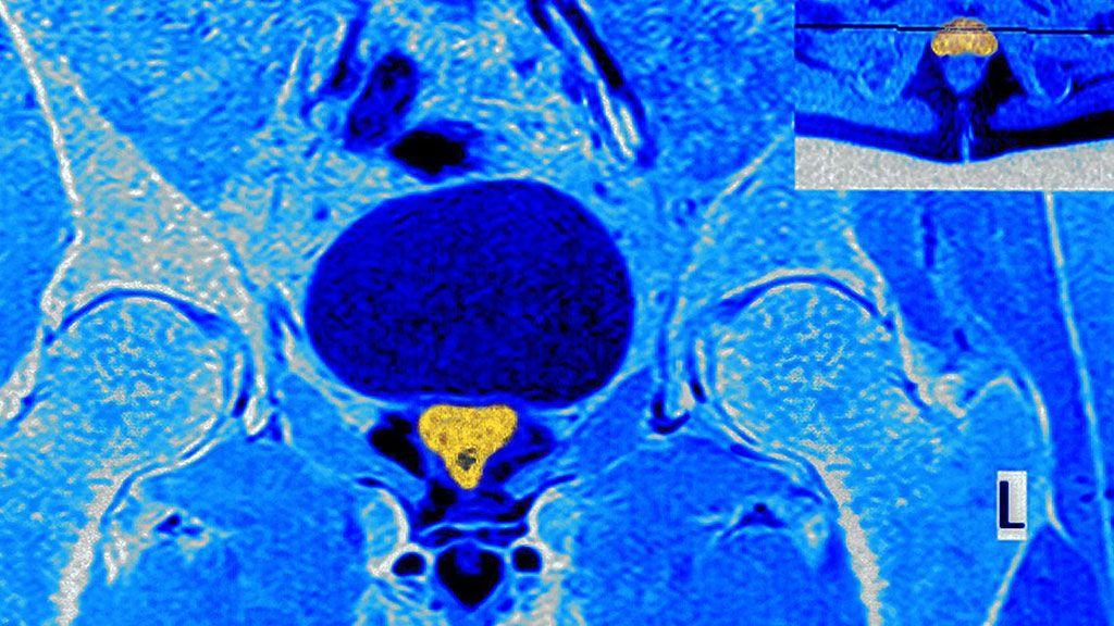 Imagen: Las imágenes de mpRM miden el tamaño del tumor de próstata como más pequeño que el verdadero (Fotografía cortesía de Alamy)
