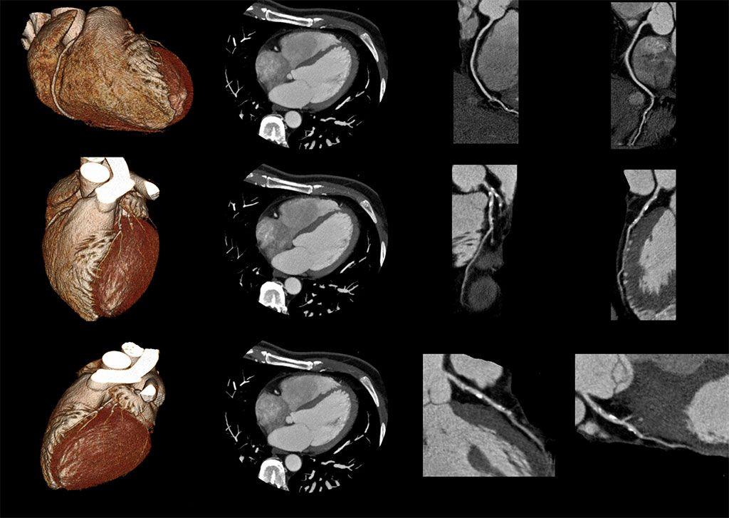 Imagen: La TC cardiaca con IA puede detectar la acumulación de calcio en la válvula aórtica (Fotografía cortesía de Getty Images)