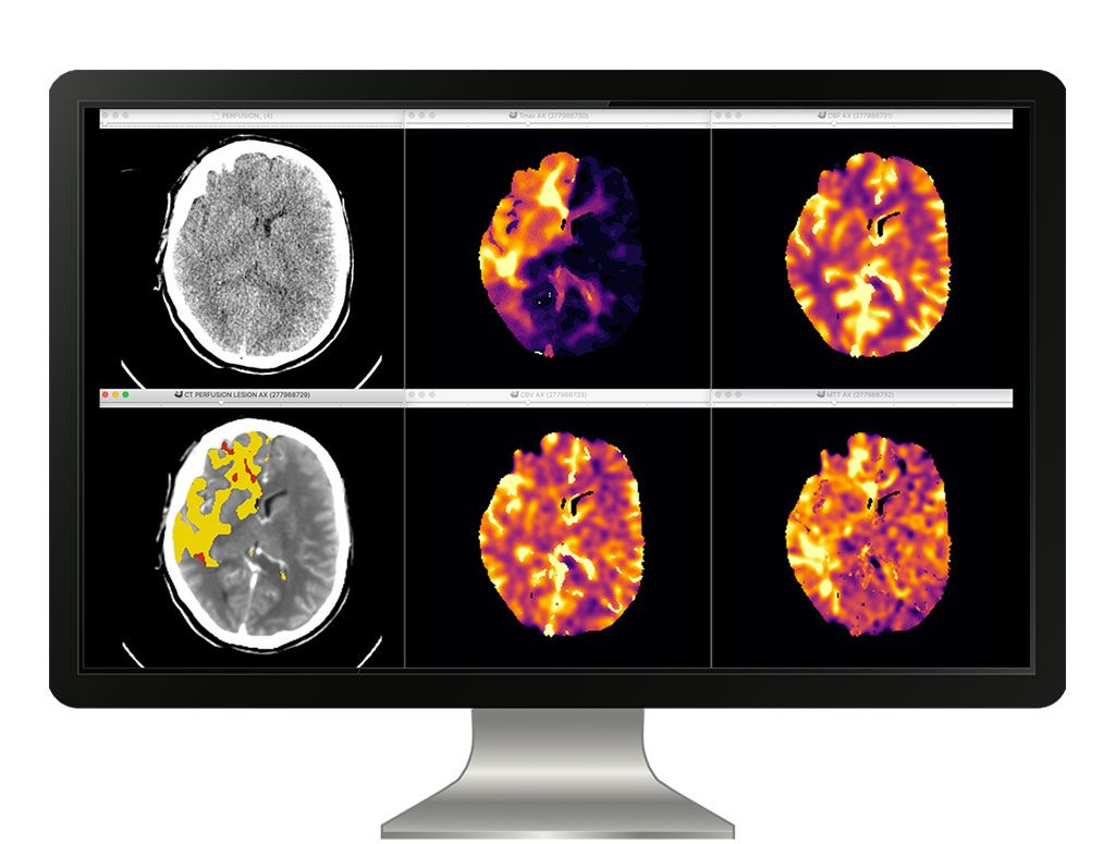 Imagen: Una plataforma totalmente automatizada evalúa el estado de la perfusión cerebrovascular (Fotografía cortesía de icometrix)