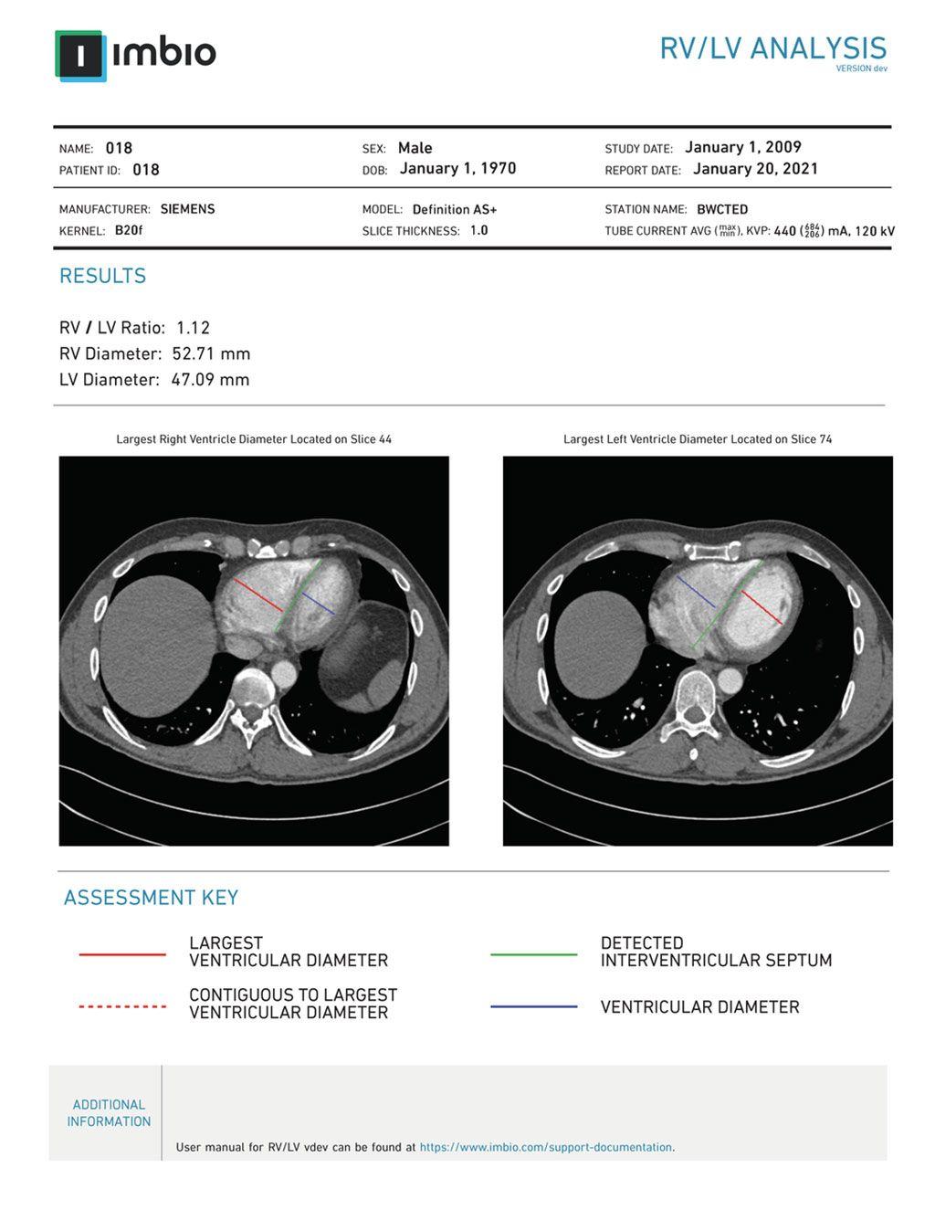 Imagen: Un ejemplo de un informe de análisis de VD/VI (Fotografía cortesía de Imbio)