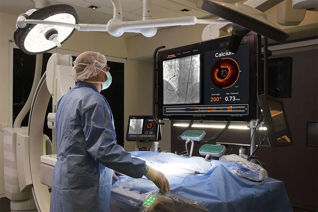 Imagen: La TCO y Ultreon Software obtienen imágenes de los depósitos de calcio en los vasos sanguíneos (Fotografía cortesía de Abbot)