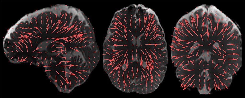 Imagen: Patrones de desplazamiento cerebral habilitados por el procesamiento adicional de la aMRI 3D (Fotografía cortesía de Mātai)