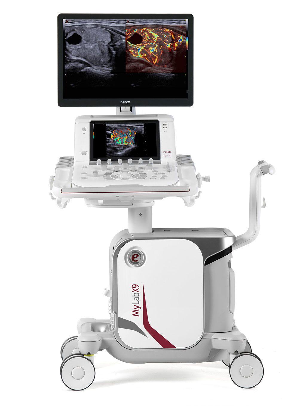 Imagen: El sistema de ultrasonido MyLab X9 de 64 bits X ULTRA (Fotografía cortesía de Esaote)
