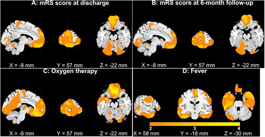 Imagen: Subparcelas de VMG en las circunvoluciones frontales superior/medial/media (Fotografía cortesía del Instituto de Tecnología de Georgia)