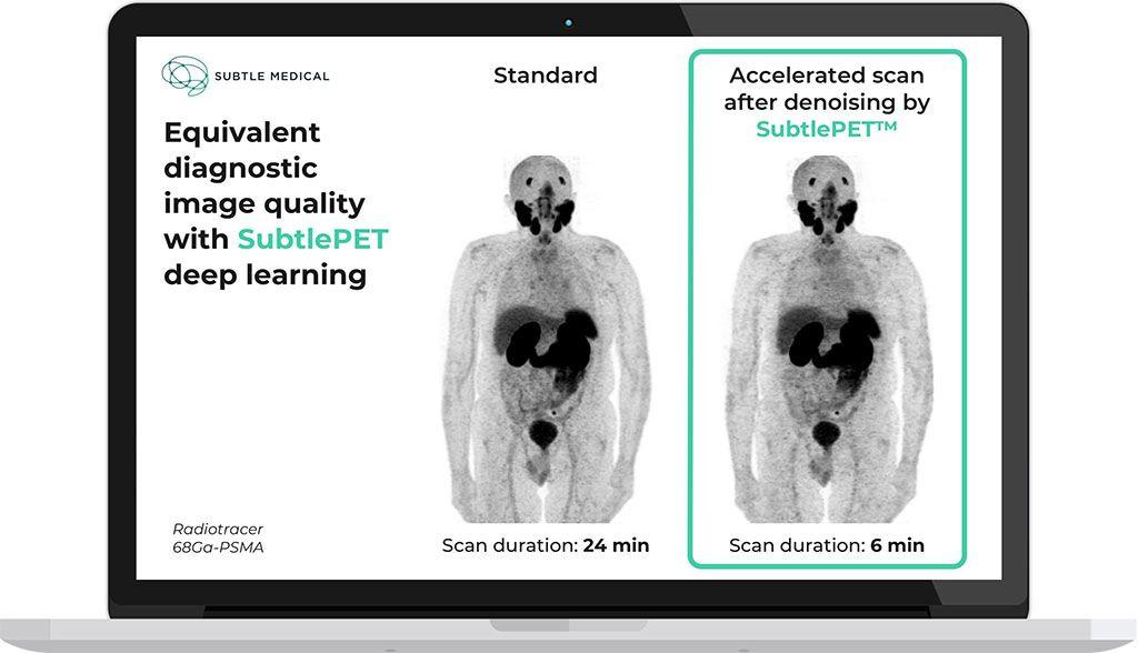 Imagen: Calidad de imagen de diagnóstico equivalente del software SubtlePET (Fotografía cortesía de Subtle Medical)