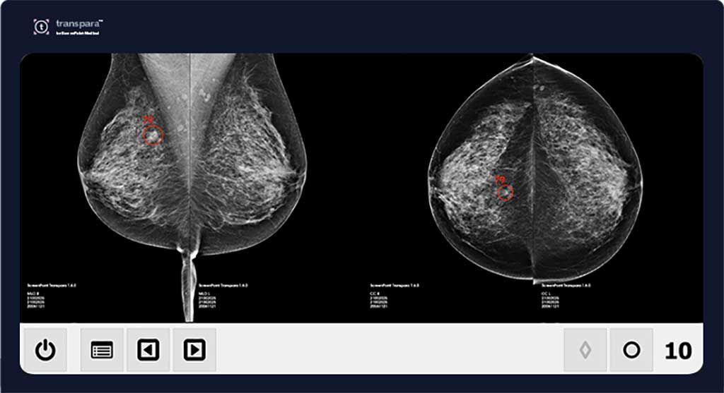 Imagen: Transpara AI puede reducir la carga de trabajo de las mamografías (Fotografía cortesía de ScreenPoint Medical)