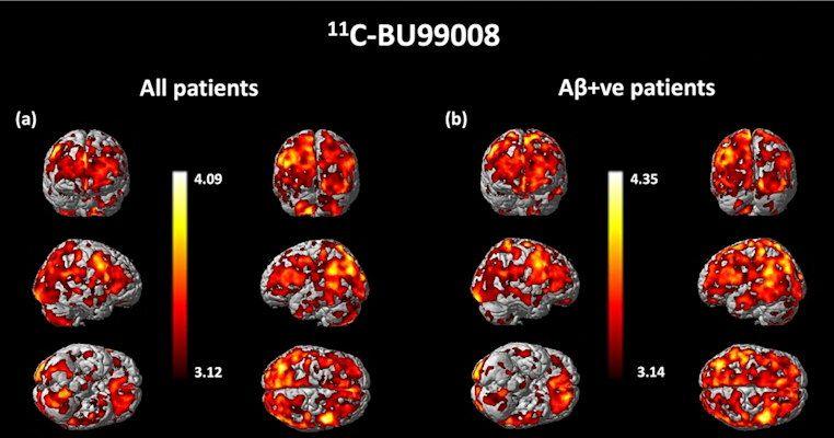 Imagen: Análisis de mapeo de la captación significativamente aumentada de 11C-BU99008 (Imagen cortesía de Molecular Psychiatry)