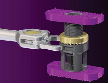 The NuVasive X-Core Mini Cervical Expandable VBR system and tool