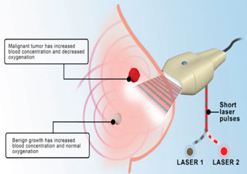 Image: The Imagio is a dual-modality, two-dimensional (2D) optoacoustic/ultrasonic imaging system for diagnostic imaging of breast cancer (Photo courtesy of Seno medical Instruments).