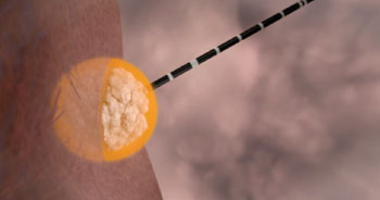 Image: Emprint ablation system antenna inserted into a tumor directly through the skin (Photo courtesy of Covidien).