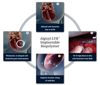 Image: The Algisyl-LVR hydrogel implant procedure (Photo courtesy of LoneStar Heart).