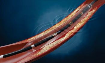 Image: The Lithoplasty balloon catheter system (Photo courtesy of Shockwave Medical).