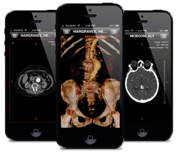 Image: ResolutionMD across multiple devices (Photo courtesy of Calgary Scientific).