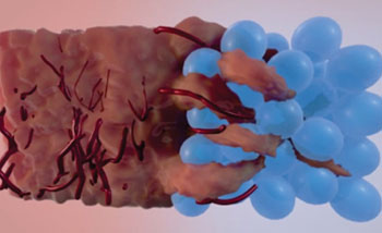 Image: Tissue infiltrates the injectable MAP spheres gel fills, promoting regeneration (Photo courtesy of UCLA).