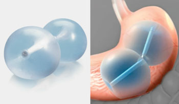 Image: The ReShape Integrated Dual Balloon System (Photo courtesy of ReShape Medical).