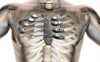 Image: The 3D printed titanium sternum and ribs (Photo courtesy of CSIRO).