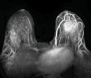 Image: MRI Image Displaying Invasive Breast Cancer (Photo courtesy of Cancer Network).
