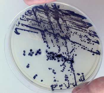 Image: Clostridium difficile in a Petri dish (Photo courtesy of the University of Portsmouth).