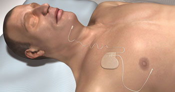 Image: The Inspire Upper Airway Stimulation device (Photo courtesy of Inspire Medical Systems).