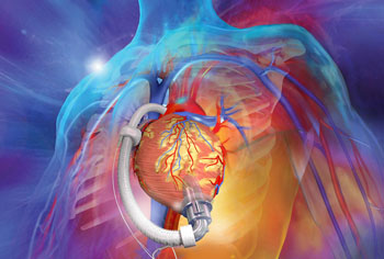 Image: The aVAD intraventricular, axial flow LVAD (Photo courtesy of ReliantHeart).