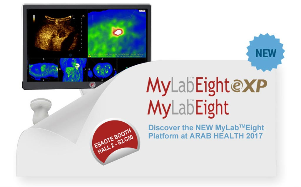 Image: Esaote presented the MyLab Eight ultrasound platform, along with MyLab One, portable ultrasound with touch, at Arab Health (Photo courtesy of Esaote).