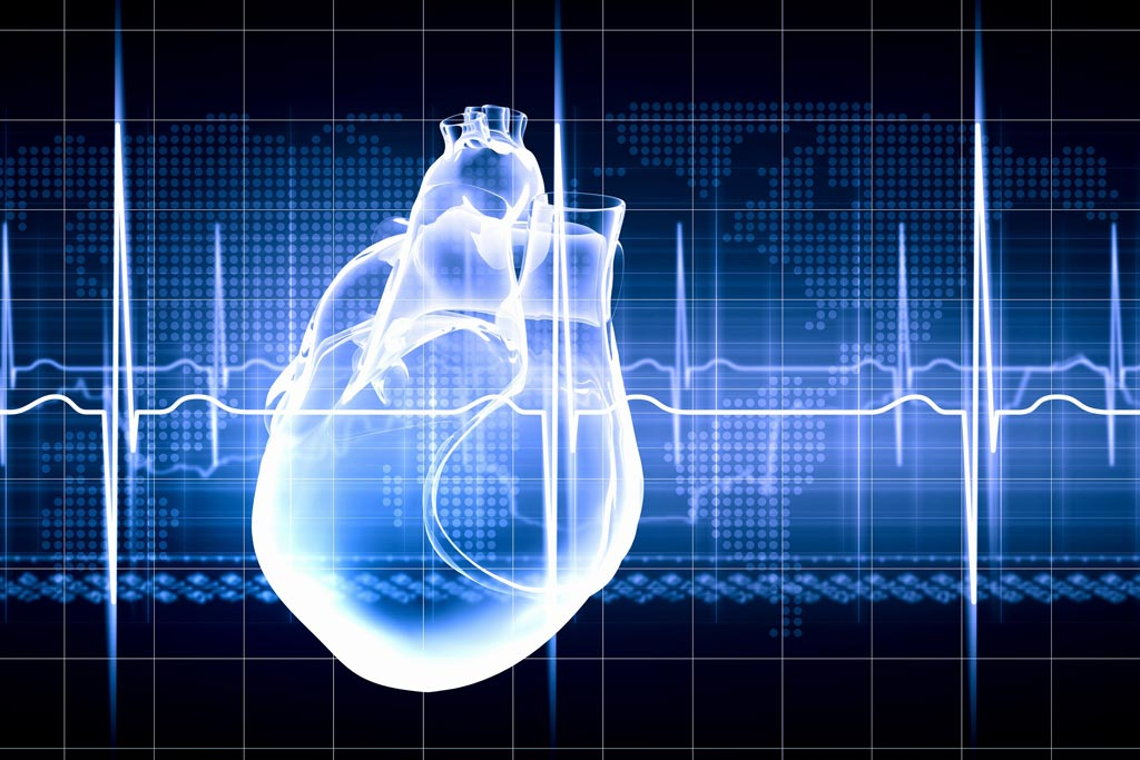Image: A new study suggests people enroled in a heart failure registry receive better care (Photo courtesy of ThinkStock).