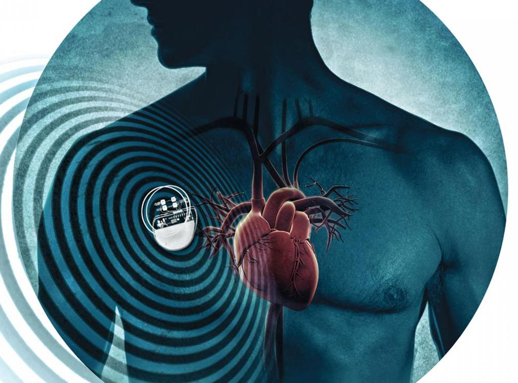 Image: A new study shows pacemakers are susceptible to interference from electromagnetic (EM) fields emitted from personal electronics, household appliances, and power lines (Photo courtesy of Shutterstock).