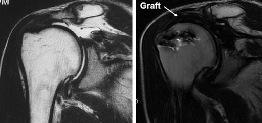 Image: Comparative MRI scans before (L) and four years after ASCR (R) (Photo courtesy of Teruhisa Mihata).
