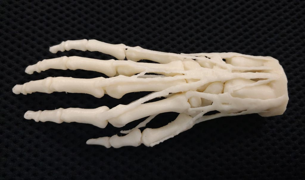 Image: A 3D-printed hand model for teaching, diagnosis, and procedure planning. VA hospitals can request models 3D printed on network printers for shipment (Photo courtesy of Stratasys).