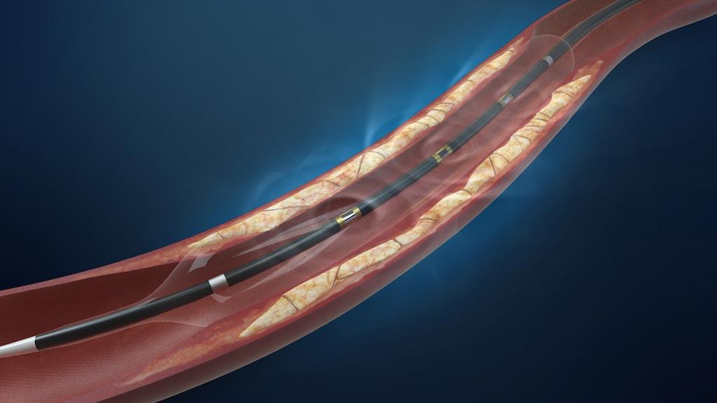 Image: The lithoplasty balloon catheter system (Photo courtesy Shockwave Medical).