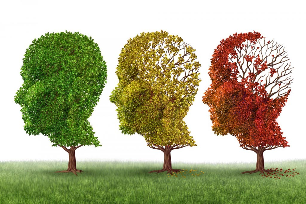 Image: A new study indicates more people suffering from Alzheimer's disease are dying at home (Photo courtesy of CanStockPhoto).
