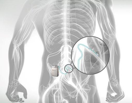 Image: The SJM Axium Neurostimulator stimulation system (Photo courtesy of SJM).