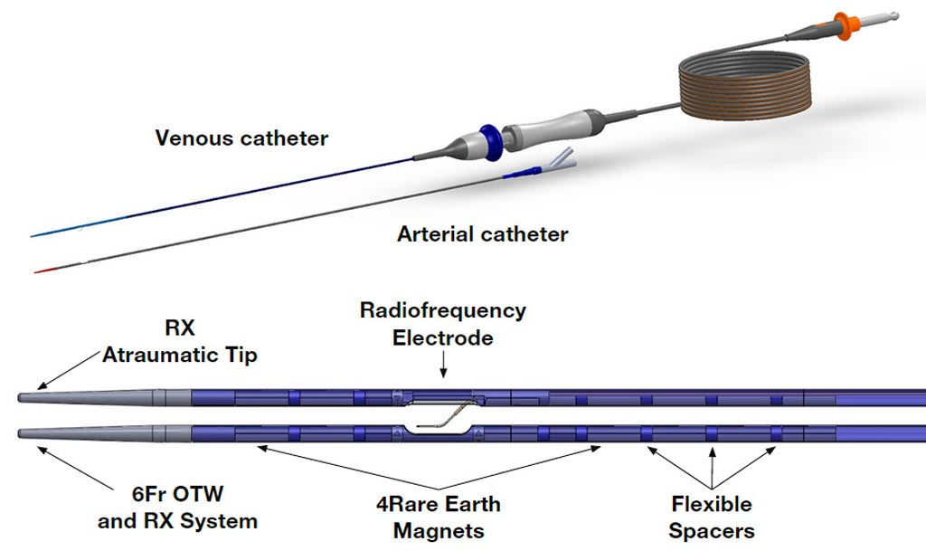 Image: A new two-catheter system creates a non-traumatic AVF (Photo courtesy of TVA Medical).