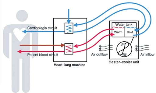 Image: Research shows heater-cooler units can harbor many dangerous pathogens (Photo courtesy of the FDA).