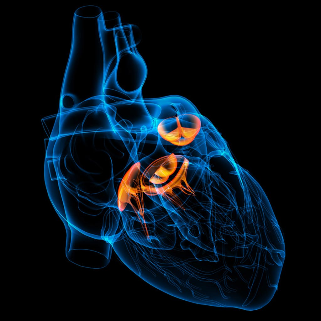Image: The American College of Cardiology, together with several prominent hospitals in central and eastern China, is debuting a series of educational forums on valvular heart disease prevention, diagnosis, and management (Photo courtesy of iStock).