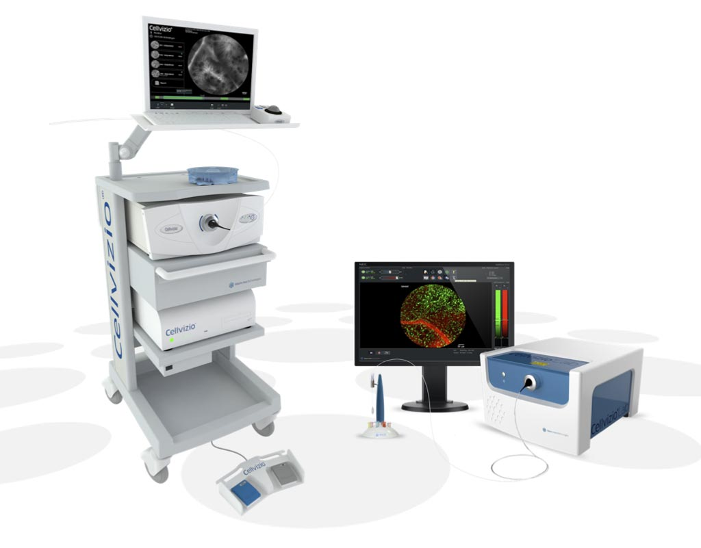 Image: The Cellvizio probe-based confocal laser endomicroscopy (pCLE) system (Photo courtesy of Mauna Kea Technologies).