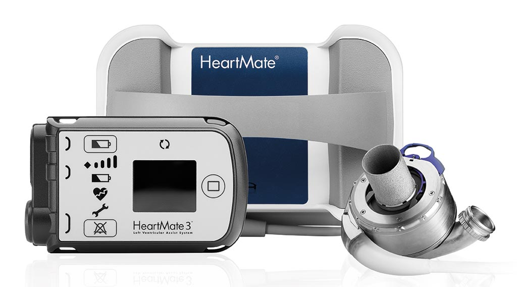 Image: The full MagLev HeartMate 3 LVAD system (Photo courtesy of Abbott).