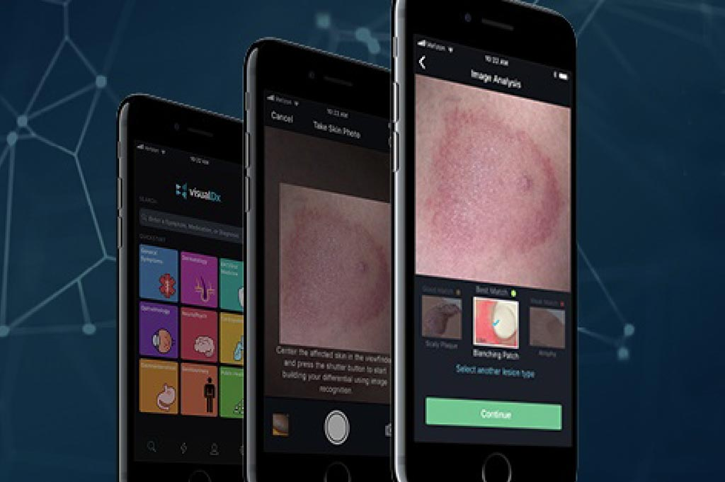 Image: The enhanced VisualDx app with Core ML is a framework enabling on-device machine learning to help provide healthcare professionals with quick and accurate identification of rashes and skin lesions (Photo courtesy of VisualDx).