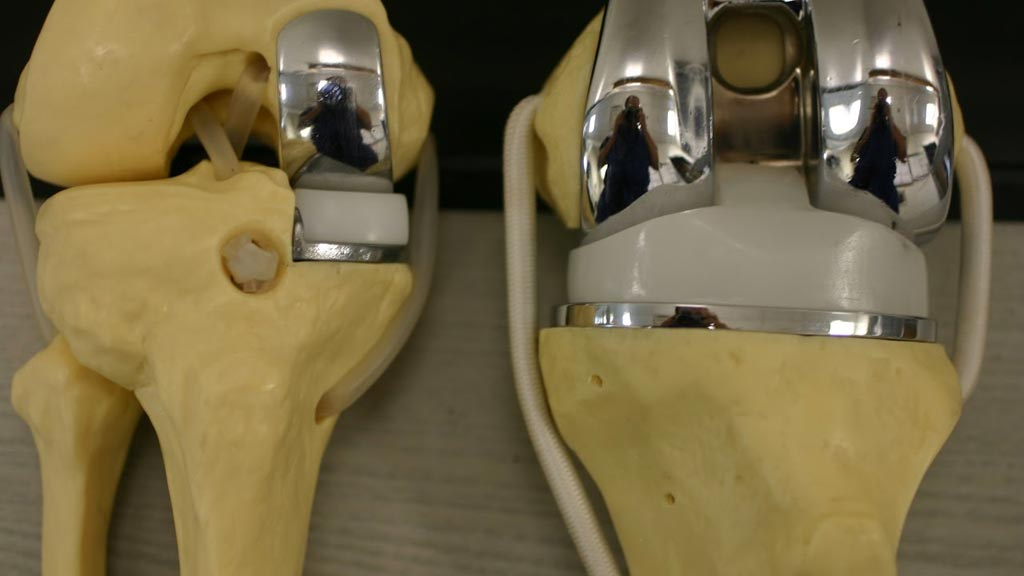 Image: A partial (L) versus total (R) knee replacement (Photo courtesy of iStock).