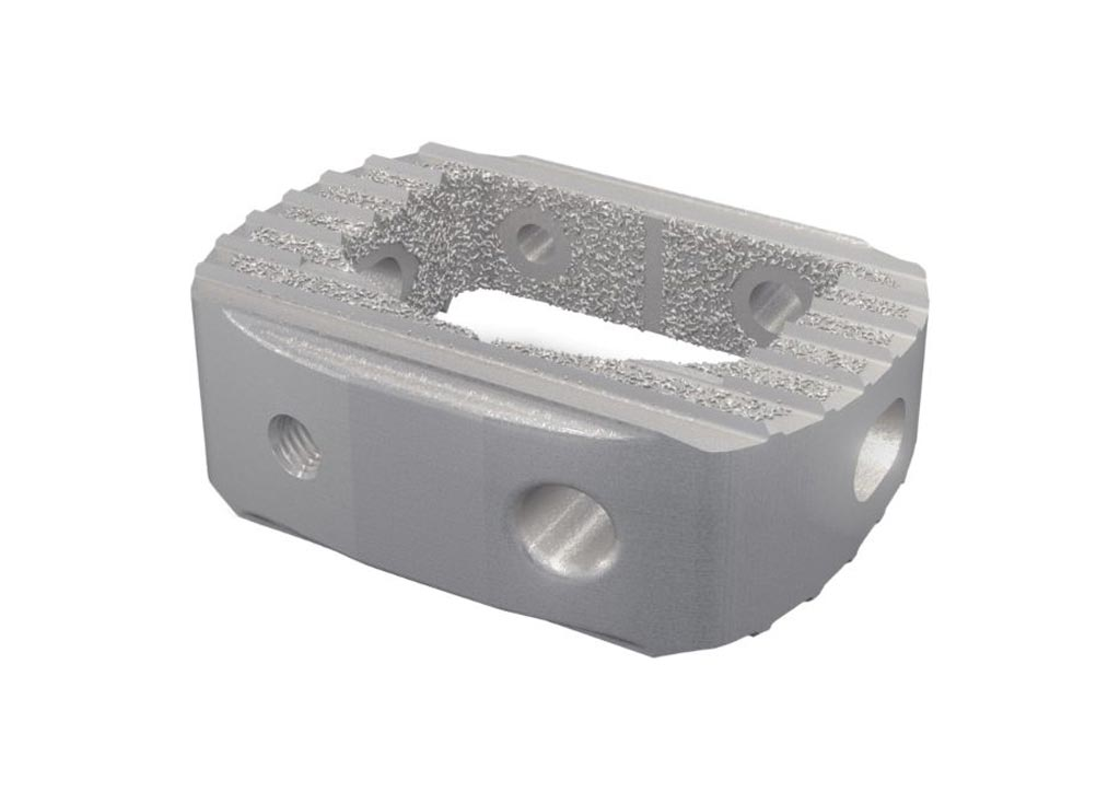 Image: The Tritanium C anterior cervical cage implant (Photo courtesy of Stryker).