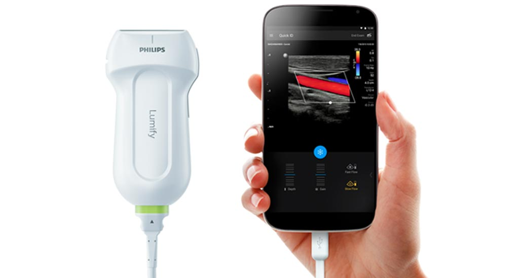 Image: The Lumify system is designed as a high-quality portable ultrasound (Photo courtesy of Philips Healthcare).