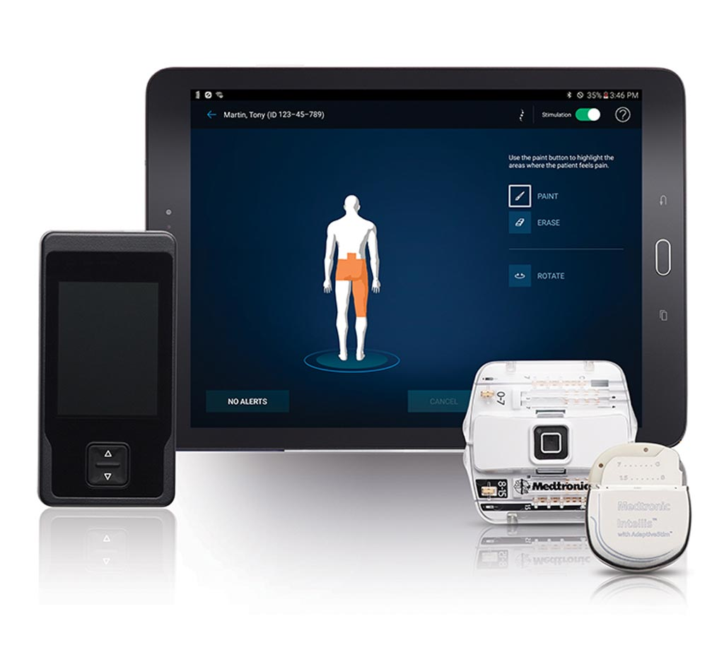 Image: A miniaturized SCS system helps relieve chronic pain (Photo courtesy of Medtronic).